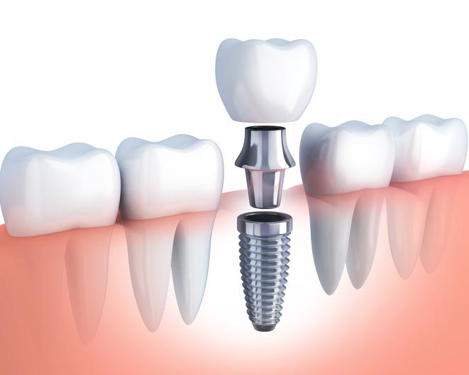 В чем преимущества зубного имплантата